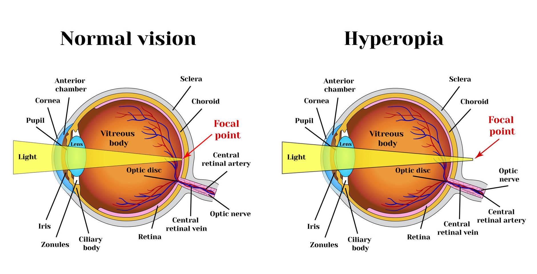 Miért alakul ki myopia és hyperopia - Ultrahang fórum a gyanúti nyelőcső atresiára
